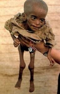 ¿Por qué más del 60% de la población mundial pasa hambre?